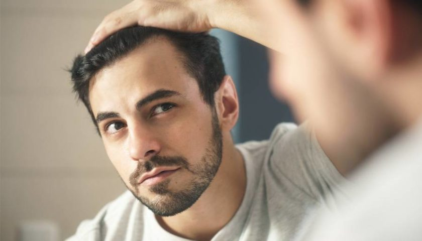 تساقط الشعر بعد زراعة الشعر